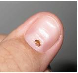 Bed Bugs Pest Control Melbourne Dawson S Australia